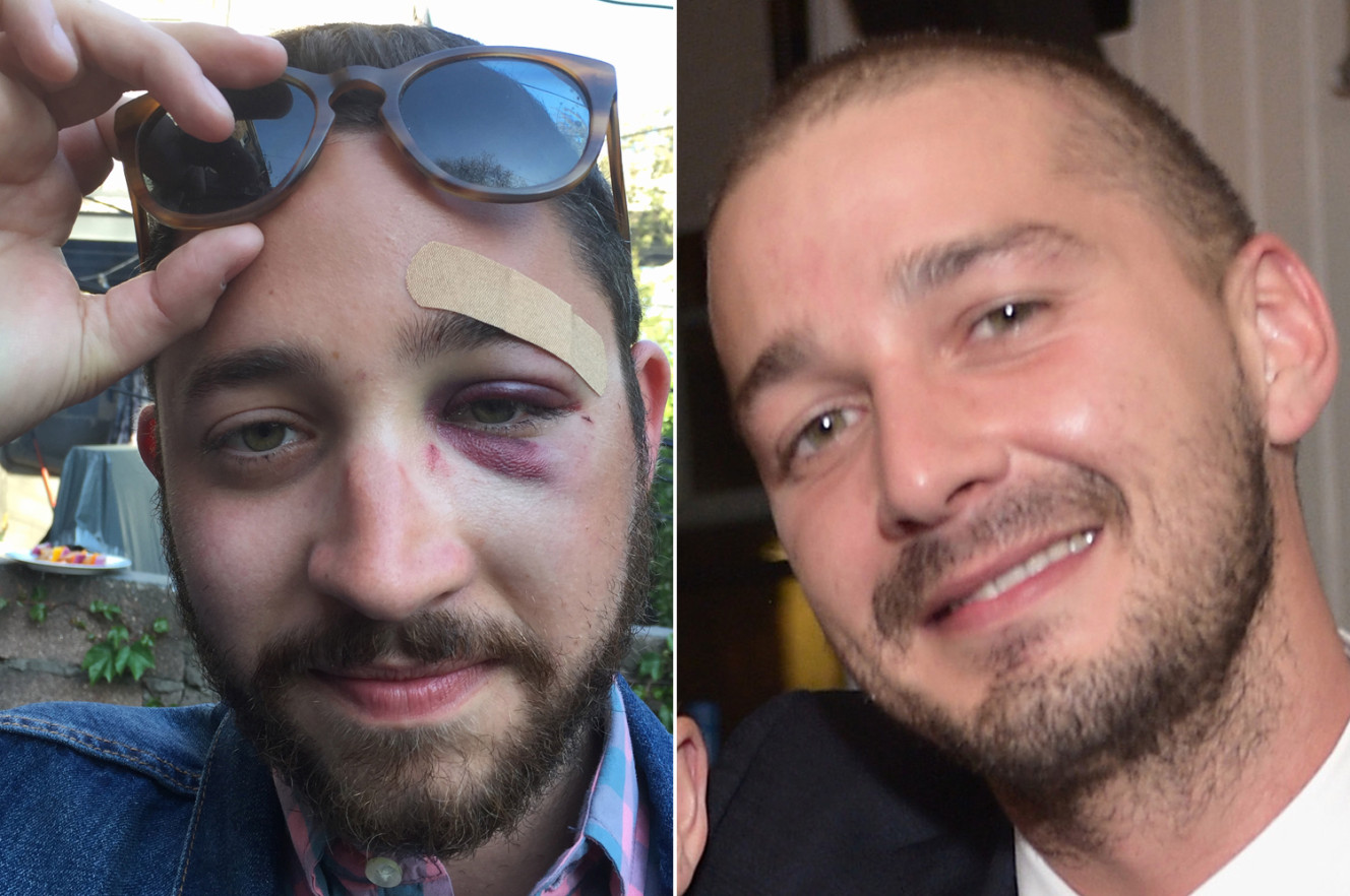Brooklyn Man Who Got Attacked For Looking Like Shia LaBeouf Gets A Phone Call From LaBeouf Himself